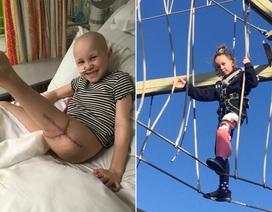 Mắc ung thư xương, bé 7 tuổi được cứu bằng ca phẫu thuật…xoay ngược chân