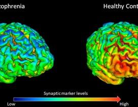 Tìm thấy sự khác biệt trong bộ não của những người bị tâm thần phân liệt