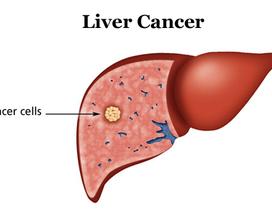 Xét nghiệm AFP tầm soát ung thư gan