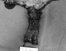 Lần đầu nội soi cắt toàn bộ âm đạo, cứu sống nữ bệnh nhân ung thư