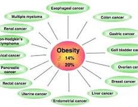 Vận động đều đặn ngừa chặn ung thư