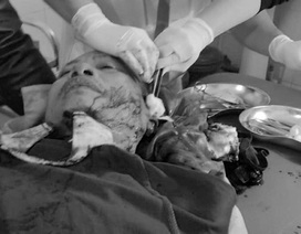 Công an viên xã bị vây chém trọng thương trong đêm