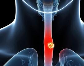 Bị ung thư thực quản nhiều nguy cơ mắc thêm ung thư thứ 2