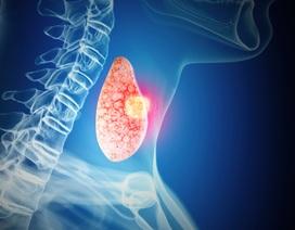 Bệnh nhân ung thư tuyến giáp phải làm gì khi kết thúc điều trị?