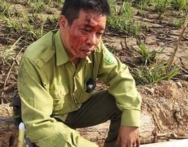 Lâm tặc hung hãn, tấn công kiểm lâm VQG Yok Đôn