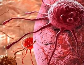 """Dự án nghiên cứu """"khổng lồ"""" khám phá cách các khối u hình thành"""
