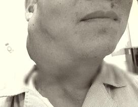Tin lời đắp thuốc lá, bệnh nhân suy kiệt vì hai loại ung thư giai đoạn cuối