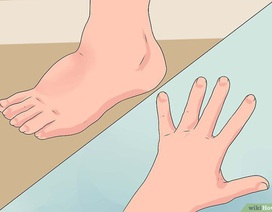 Thấy 3 dấu hiệu đột ngột, bạn nên cẩn thận vì nguy cơ bệnh ung thư giai đoạn cuối rất cao