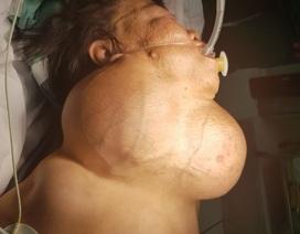 """Phẫu thuật lấy khối u """"khủng"""" cho nữ bệnh nhân nghèo"""