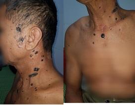 Người đàn ông mắc hội chứng đa ung thư da liên quan tới di truyền