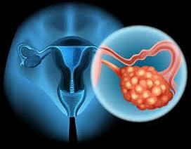 Cháo thuốc cho bệnh nhân ung thư buồng trứng