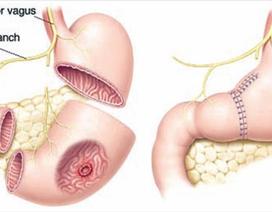 Phát sinh u sau cắt đoạn dạ dày