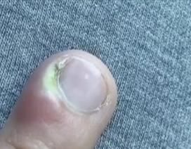 Cô gái 18 tuổi suýt phải cắt cụt ngón tay vì thói quen nhiều người mắc phải