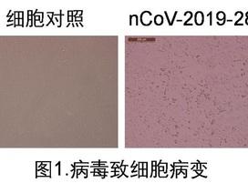 Trung Quốc phân lập được Covid-19 trong nước tiểu người bệnh
