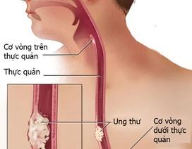 Các giai đoạn của ung thư thanh quản