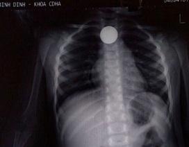 Bình Định: Gắp dị vật đồng xu kẹt trong thực quản bé 3 tuổi