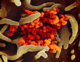 Biến đổi gen ở virus COVID-19 tương tự biến đối ở HIV, Ebola