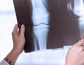 Những ai cần cảnh giác với bệnh ung thư xương