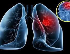 Các nguyên nhân gây bệnh ung thư phổi