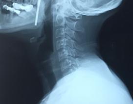 Hoảng hồn thanh kim loại 10cm cắm vào cổ bệnh nhân