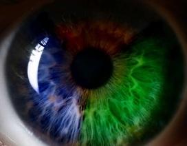 Kính áp tròng kiểu mới có thể giúp khắc phục bệnh mù màu