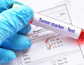 7 dấu ấn ung thư thường sử dụng