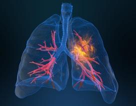 Phát triển trí tuệ nhân tạo để sàng lọc ung thư phổi thông qua mẫu máu