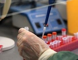 Nga nghiên cứu sử dụng Plasma lạnh chống lại sự lây lan Covid-19