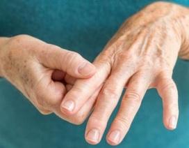 Tê bì chân tay theo y học cổ truyền