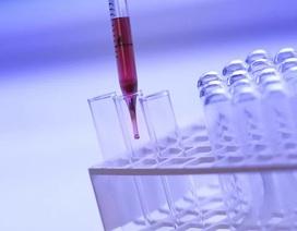 Các nhà nghiên cứu nêu ra chỉ số tiên lượng tử vong do coronavirus