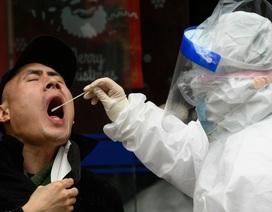 Đặc điểm nguy hiểm khiến SARS-CoV-2 dễ lây lan hơn chủng virus corona khác