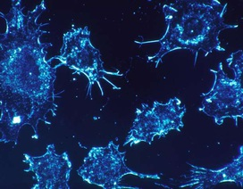 """Tăng hiệu quả điều trị ung thư giai đoạn muộn bằng liệu pháp """"kép"""""""