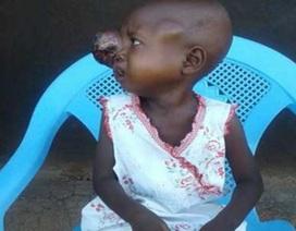 Em bé 2 tuổi mang khối u khổng lồ trên mắt vì không có tiền chữa ung thư