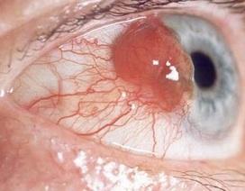 Những tiến bộ trong điều trị ung thư mắt