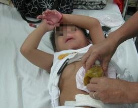 Sợ dịch Covid-19, liên tiếp 2 bệnh nhi suýt chết vì vỡ ruột thừa