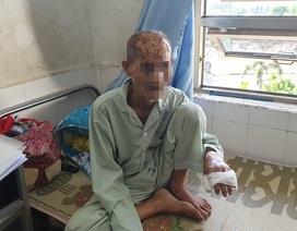 Vụ cụ ông 74 tuổi bị rạch nát đầu: Khởi tố cháu nội