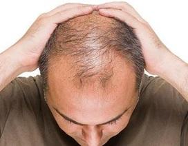 Viên sủi mọc tóc, hạn chế tóc bạc Long Hair - Bí quyết làm đẹp cho mái tóc của bạn