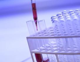 Roche phát triển xét nghiệm huyết thanh học mới nhằm phát hiện các kháng thể Covid-19
