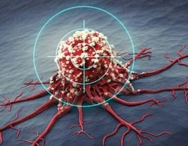Xây dựng thành công mô hình dự đoán trước kết quả điều trị ung thư