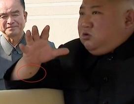 """""""Vết đỏ bí ẩn"""" trên cổ tay ông Kim Jong-un"""