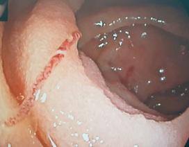 Thiếu máu trầm trọng vì giun lúc nhúc bám trong ruột non, gây chảy máu ồ ạt
