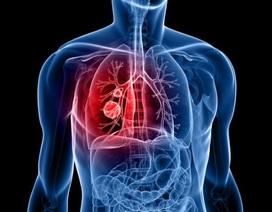 """Israel chữa ung thư bằng cách """"làm sạch"""" phổi"""