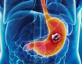Làm gì để phát hiện sớm ung thư dạ dày?