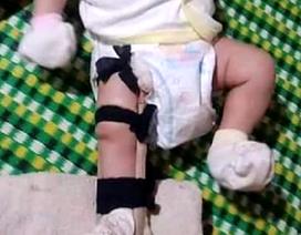 """Bé 2 tháng tuổi bị cha ruột """"sơ ý dẫm gãy chân""""?"""