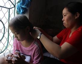 Rớt nước mắt nhìn cô bé tóc rụng từng nắm sau những lần xạ trị