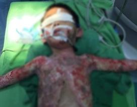 Nghịch bật lửa, bé trai 5 tuổi bị bỏng nặng toàn thân