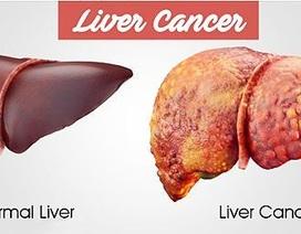 Điều trị ung thư gan bằng cách nhắm vào...tế bào khỏe mạnh