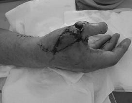 Cắt ngón chân lên thay ngón tay cái bị cưa cắt cụt
