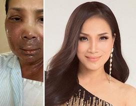 Nghệ sĩ Việt sốc khi Hồng Ngọc chia sẻ khuôn mặt bị bỏng nghiêm trọng