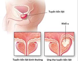 Ung thư tiền liệt tuyến có thễ chữa lành?